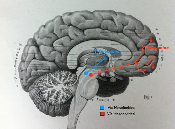 Afectación de las Vías Mesolímbica y Mesocortical en la Esquizofrenia. Responsable de los Síntomas Positivos y Negativos Respectivamente.